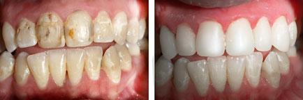Ebenezer Dental Case Study 1