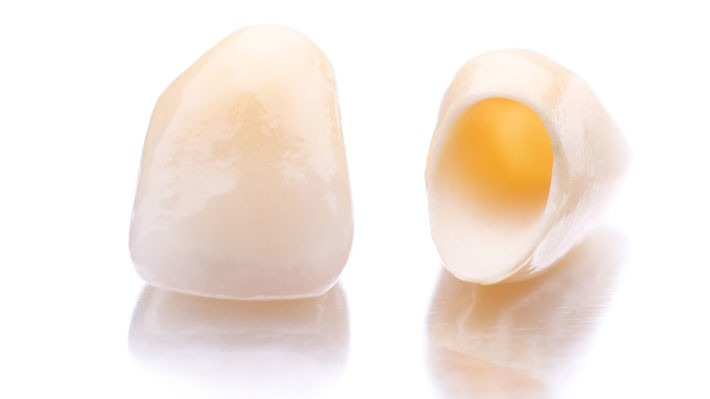 How Long Should a Porcelain Crown Last?