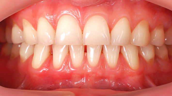 Receding gums causes, prevention and treatments