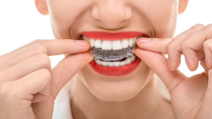 How to Recognize, Treat, and Prevent Teeth Grinding