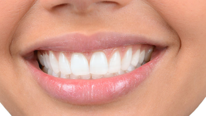 Why Professional Whitening is Superior to At-Home Solutions