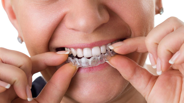Top Benefits You'll Enjoy with Invisalign Braces