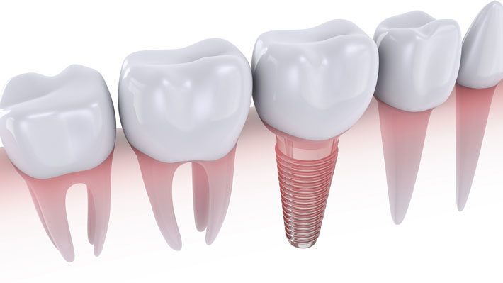 Dental Implant Facts You Need to Know