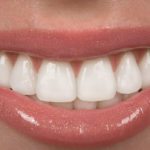 Why Get a Smile Makeover? The Survey Says…