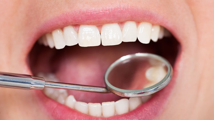 Are White Fillings as Reliable as Silver Fillings?