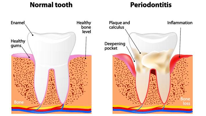 Six Early Warning Signs of Gum Disease - Dr. Karen Kang ...