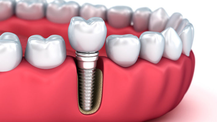 Dental Implants: How They'll Change Your Life