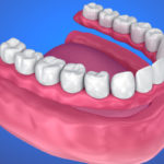 When Removable Dentures are Your Best Tooth Replacement Option
