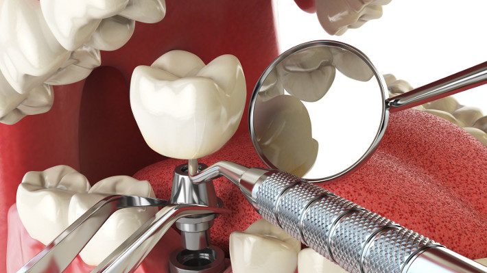 A Brief Guide to Dental Implants