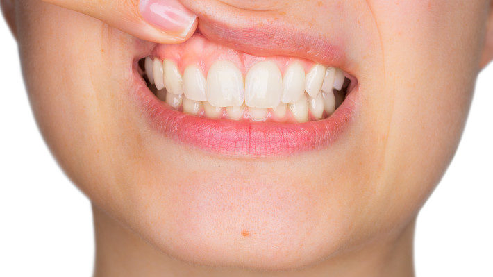 Are Your Bleeding Gums a Sign of Gum Disease?